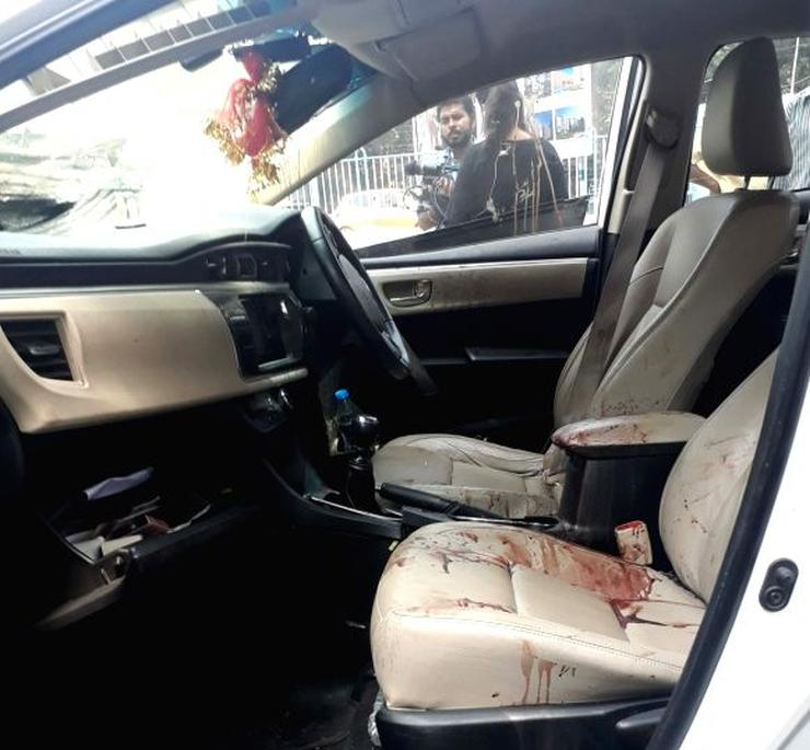 This Is What The 2020 Toyota Corolla Altis Could Look Like: Model Sonika Chauhan Dead & Actor Vikram Chaterjee Injured