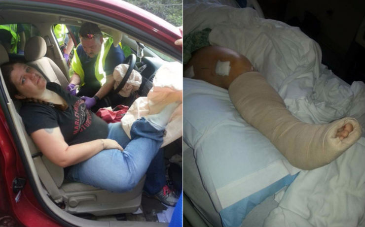 Keeping your leg on the dashboard is extremely dangerous; here's why!